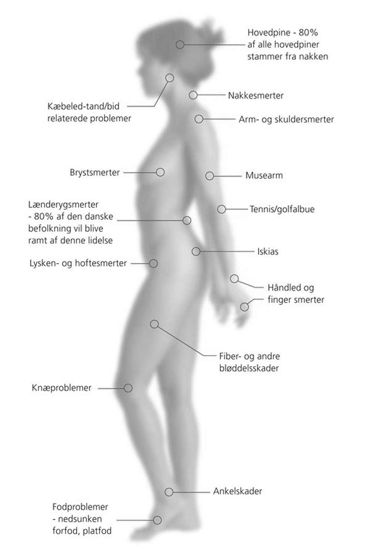 Nedsunken forfod kiropraktor